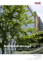 Ascitesdrænage - Hospitalsenhed Midt