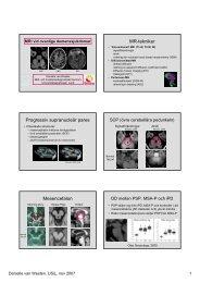 MR-tekniker Progressiv supranucleär pares Mesencefalon
