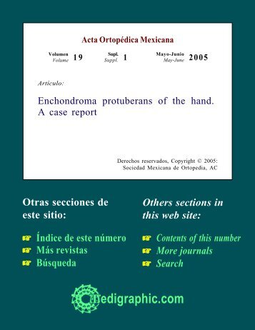 Enchondroma protuberans of the hand. A case report - edigraphic.com