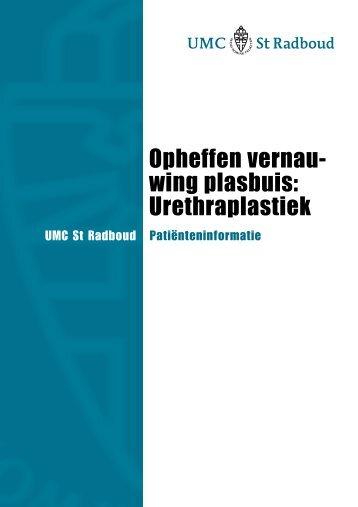 Opheffen vernau- wing plasbuis: Urethraplastiek - UMC St Radboud