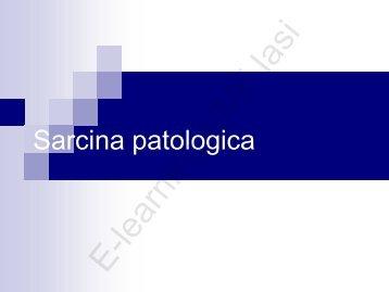 sarcina patologica mircea onofriescu E.pdf