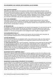Scleroseren (inspuiten) van varices (spataderen) - Huidziekten.nl