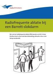 Radiofrequente ablatie bij een Barrett-slokdarm - Isala Klinieken