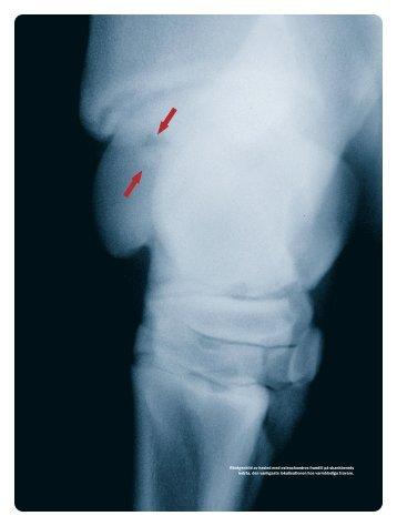 Osteochondros och lösa benbitar