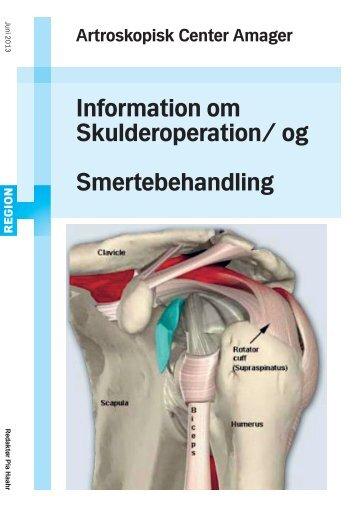 Information om Skulderoperation/Smertebehandling