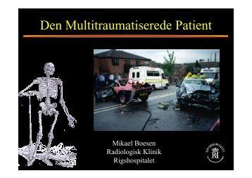 Multitraume og bækken frakturer - MRprofessor.dk