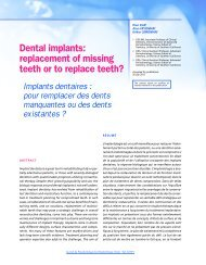 Dental implants: replacement of missing teeth or to ... - Editions CDP