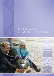 Guide till hydrocefalus