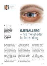 ØJENALLERGI – nye muligheder for behandling