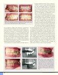 Bør ortodontien inddrages i bidrehabiliteringen hos voksne patienter? - Page 3