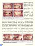 Bør ortodontien inddrages i bidrehabiliteringen hos voksne patienter? - Page 5