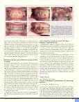 Bør ortodontien inddrages i bidrehabiliteringen hos voksne patienter? - Page 6