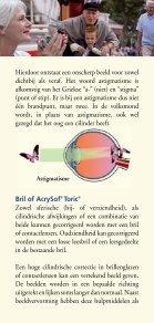 Een cilinder AcrySof Toric - Kijk op staar - Page 6