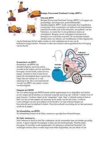 Benigne Paroxysmal Positional Vertigo (BPPV) Oorzaak BPPV ...