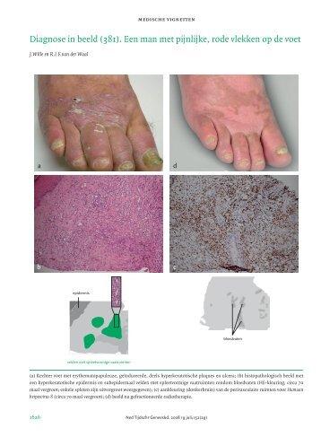 © Nederlands Tijdschrift voor Geneeskunde - Interne Geneeskunde