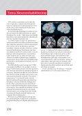 Incitament 2011-06 Inlaga.indd - Aggero MedTech AB - Page 2