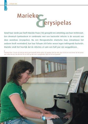 Marieke erysipelas - Huid Magazine