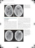 Tumorer i nervesystemet - Page 4