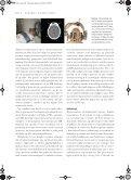 Tumorer i nervesystemet - Page 6