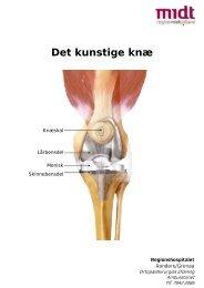 Information om Det kunstige knæ - Regionshospitalet Randers