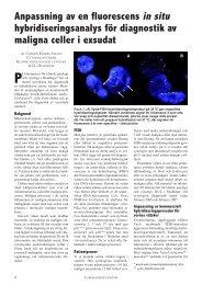 hybridiseringsanalys för diagnostik av maligna celler i exsudat
