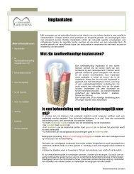 Implantaten - Tandartsenpraktijk Geluykens Poederlee Lille