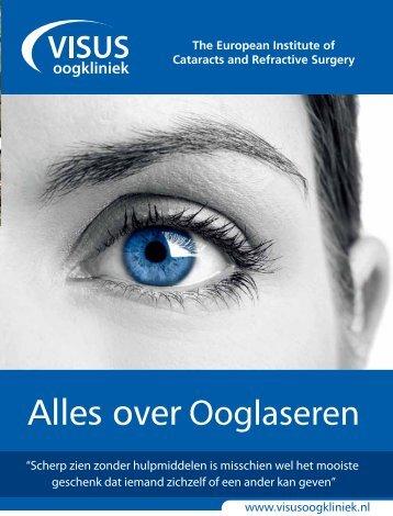 """""""Alles over ooglaseren"""" / PDF - Visus Oogkliniek"""