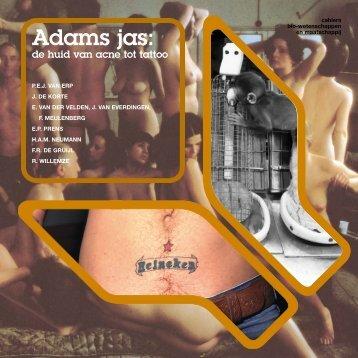 Adams jas: - Ziekte van Lyme