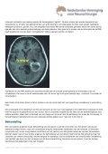 Hersentumoren - NcCH - Page 4