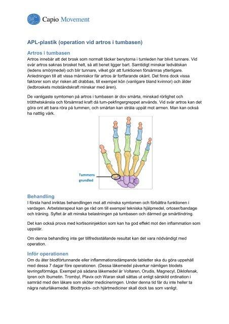 smärtlindring vid svår artros