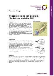 Peesontsteking van de duim - Streekziekenhuis Koningin Beatrix