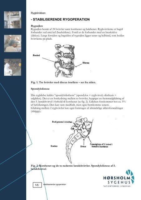 operation i ryggen