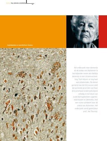 Het onderzoek naar dementie en de ziekte van Alzheimer ... - Azimuz