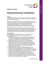 Plaveiselcarcinoom (huidkanker) - Streekziekenhuis Koningin Beatrix