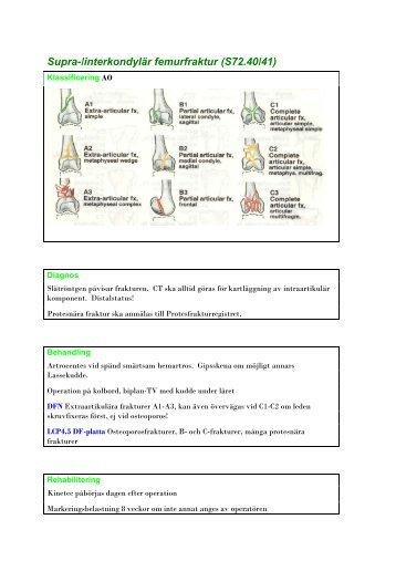 femurfraktur behandling