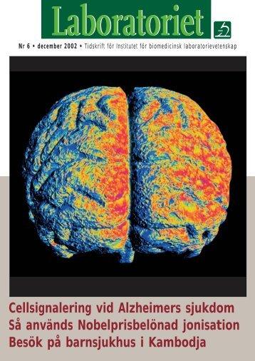 Cellsignalering vid Alzheimers sjukdom Så används ...