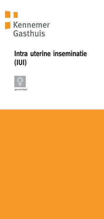 Intra uterine inseminatie (IUI) - Kennemer Gasthuis