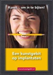 """""""Een kunstgebit op implantaten"""" (pdf) - Rutger Weijer"""