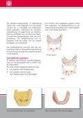 """""""Een kunstgebit op implantaten"""" (pdf) - Rutger Weijer - Page 4"""