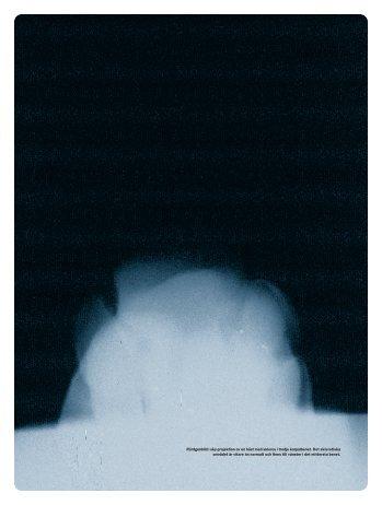 Ökad röntgentäthet i tredje karpalbenet