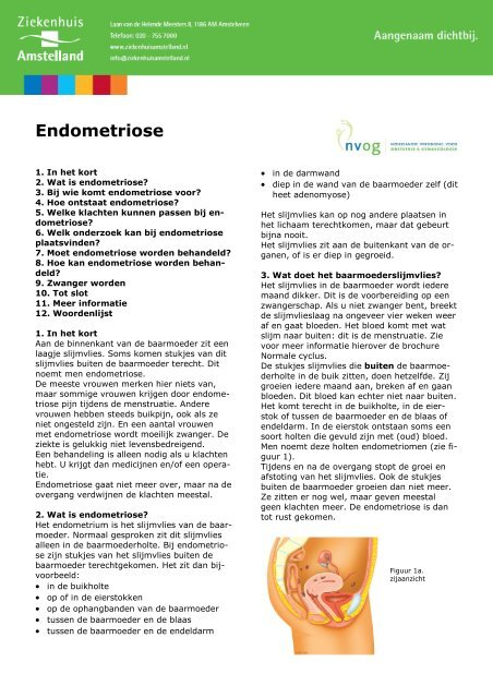1286 Endometriose Ziekenhuis Amstelland