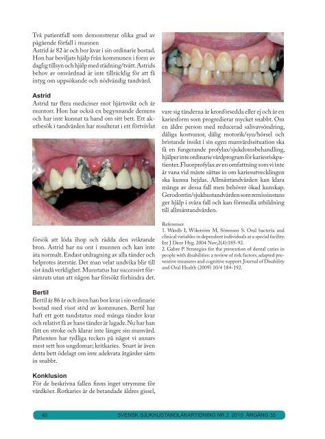 nr 2 2010.pdf - Svensk förening för Orofacial Medicin