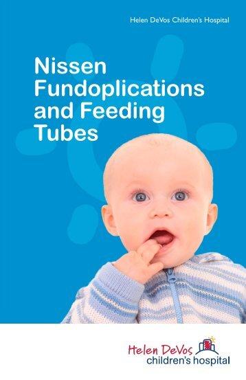 Nissen Fundoplications and Feeding Tubes - Pediatric Surgeons of ...