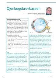 Glaslegemesammenfald - Øjenforeningen Værn om Synet