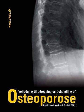 Vejledning til udredning og behandling af osteoporose - Dansk ...