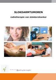 De bestraling van slokdarmkanker (pdf) - Instituut Verbeeten