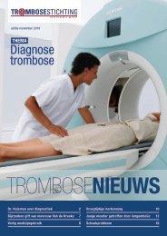 Trombosenieuws: Diagnose trombose - Trombosestichting