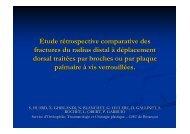 Etude retrospective comparative des fractures du radius ... - Sotest