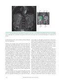 Controle na operatie feochromocytoom - Nederlandse Vereniging ... - Page 2