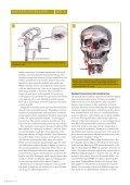 Optikeren del 1 - Nakkeskadd - Page 4